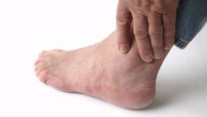 Травма стопы – одна из причин пареза