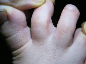 Сыпь между пальцами ног