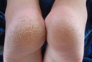 Трещины на пятках сигнализируют о проблемах со здоровьем