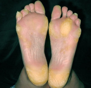Ороговевшие участки кожи на ступнях