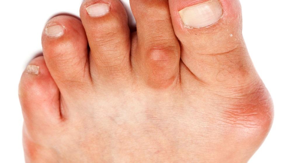 Бурсит большого пальца стопы: лечение