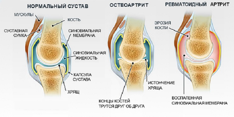Воспаление стопы ноги симптомы и лечение