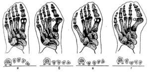 Разновидности деформации стопы
