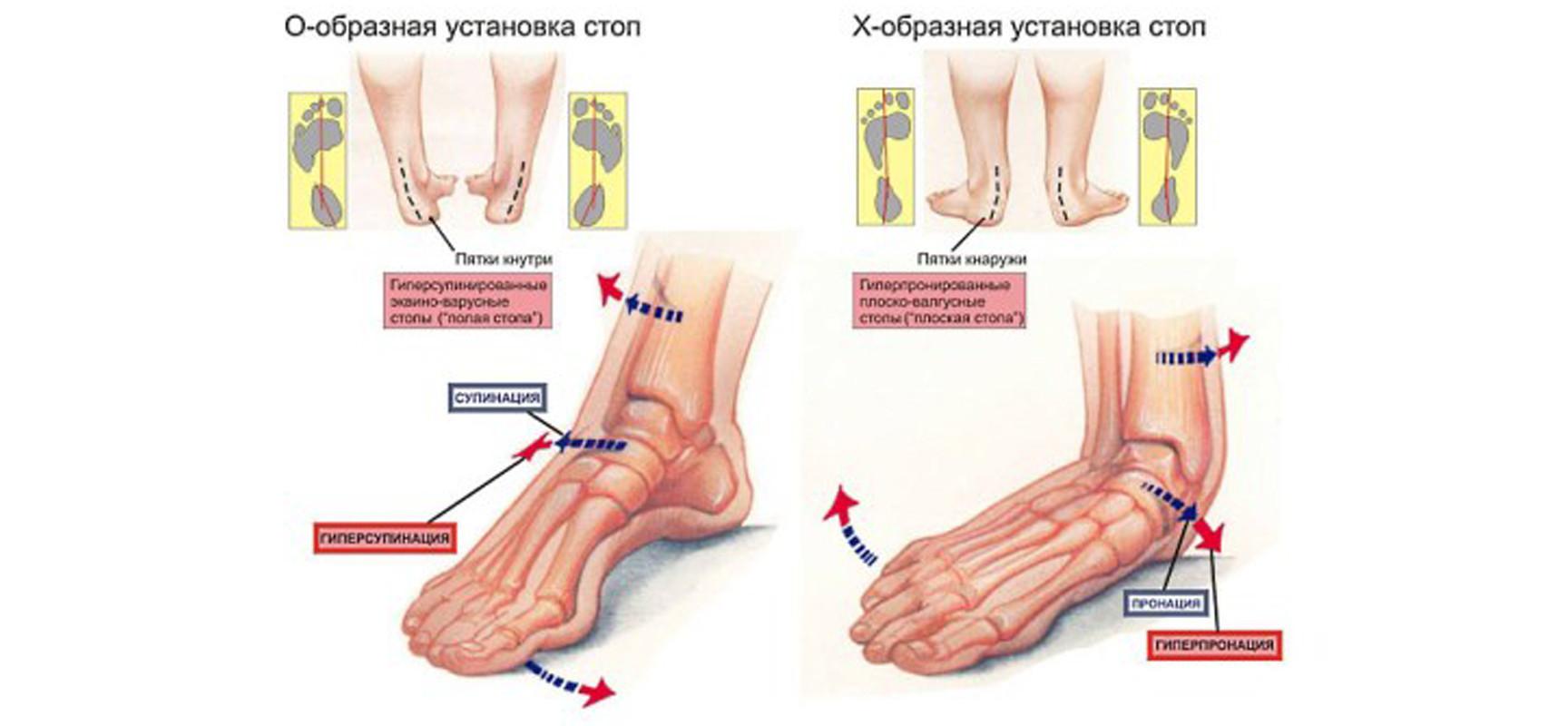 ЛФК для детей при вальгусной деформации стопы. Упражнения при вальгусной деформации стопы у детей