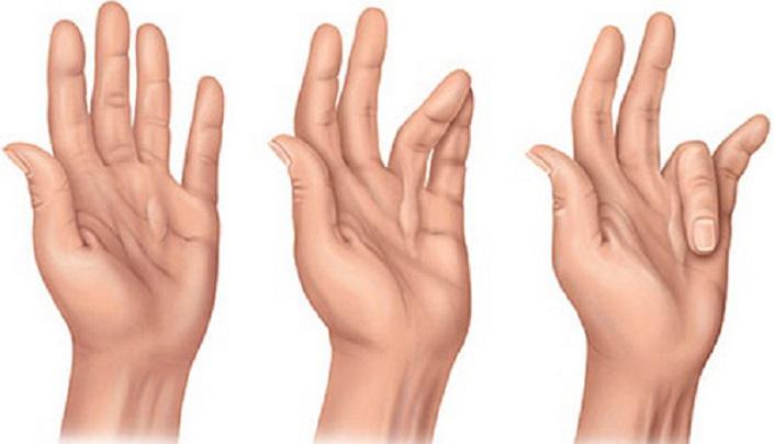 Стенозирующий лигаментит большого пальца лечение