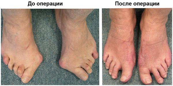 косточки на ногах на фото