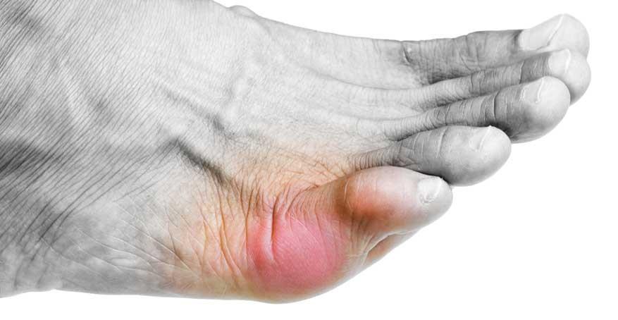 Что делать при ушибе мизинца на ноге, как лечить и отличить от ...