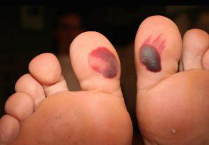 Кровавые мозоли на больших пальцах