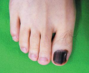 Подногтевая меланома большого пальца