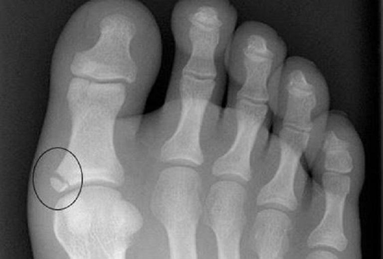 как определить перелом большого пальца на ноге