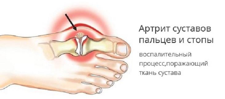 Артрит сустава большого пальца ноги