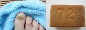 Грибок ногтя и хозяйственное мыло
