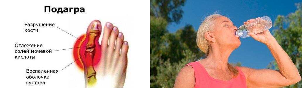 Минеральная вода при подагре на ногах