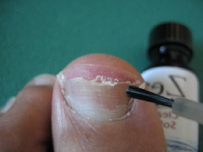 Лечение вросшего ногтя в астрахани