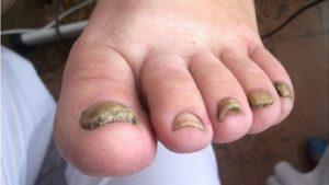 Потемневшие деформированные ногти