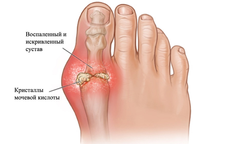 Артроз сустава большого пальца ноги: лечение и симптомы