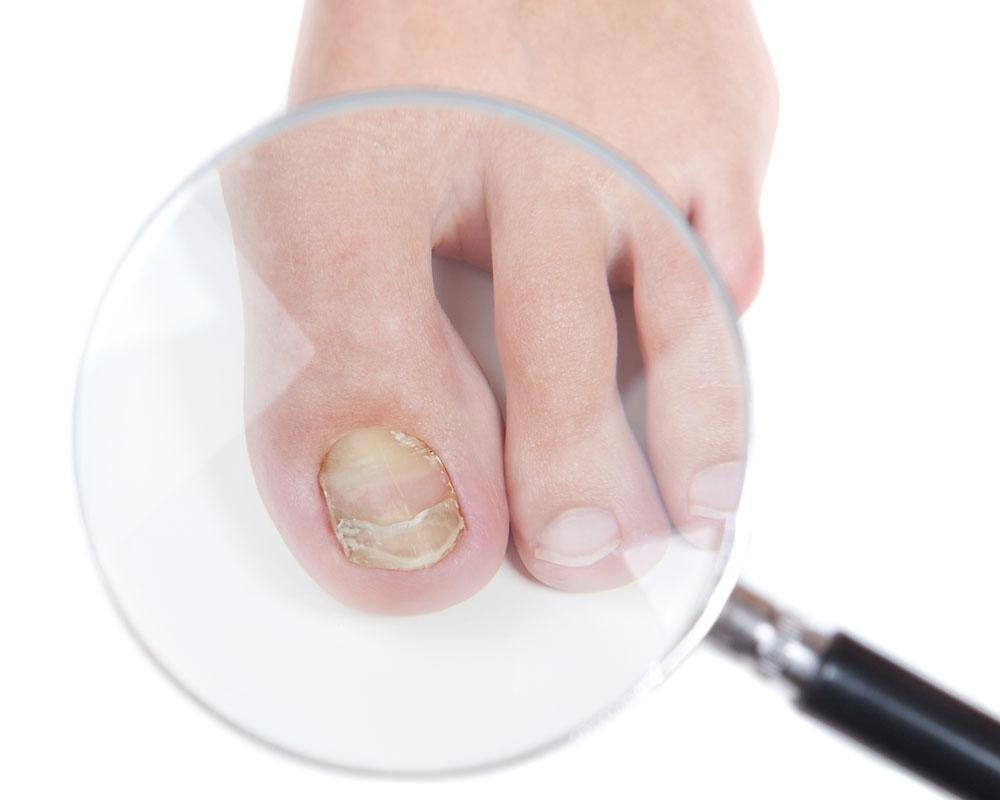 Снять ноготь грибок ногтях