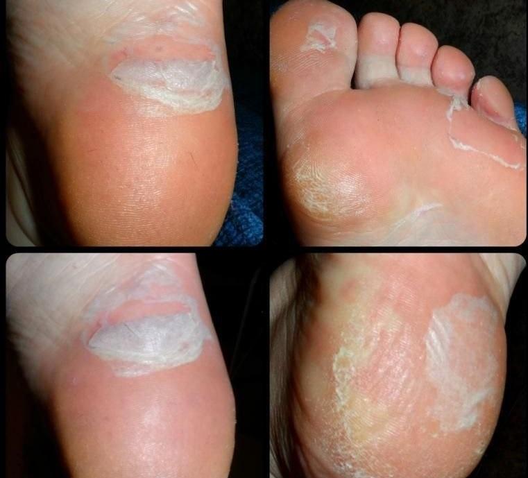 Облазит кожа на подошве ног причины