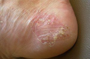 Шелушение кожи на пятке из-за псориаза