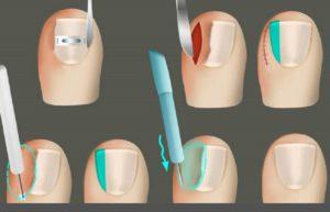 Варианты хирургического лечения вросшего ногтя