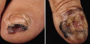 Разрушение ногтя меланомой