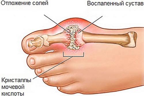 Заболевание суставов ступни 911 хондроитин гель-бальзам д/суставов 100мл отзывы