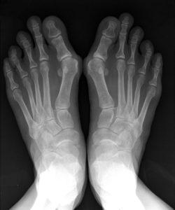 Рентгеновский снимок стоп при бурсите