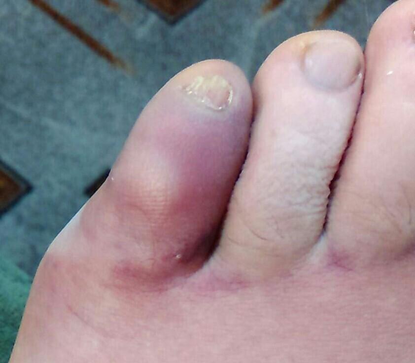 Ушиб пальца на ноге что делать и как лечить