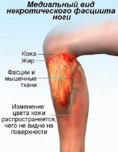 Симптомы некротического фасциита