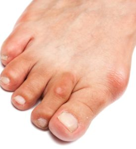 Воспаление косточки большого пальца