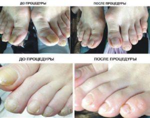 До и после процедуры медицинского педикюра