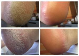Кожа пяток до и после лечения грибка