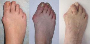Смещение пальцев на разных стадиях артроза