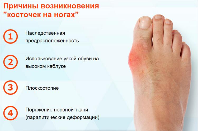 Бурсит большого пальца стопы: лечение и причины появления