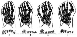 Деформации стопы на рентгенограммах