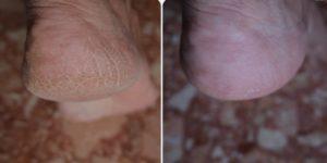 Результат лечения трещин