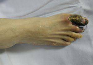 Поврежденные гангреной пальцы