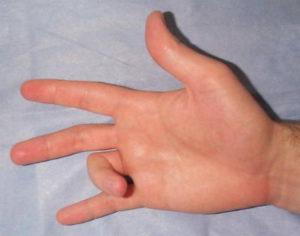 Щелкающий палец не разгибается