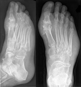 Рентгеновский снимок стопы с артрозом пальца