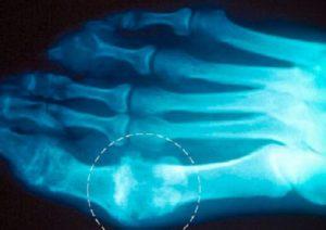 Суставы пальцев ног на рентгене
