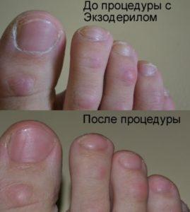 Пальцы ног до и после применения лекарства