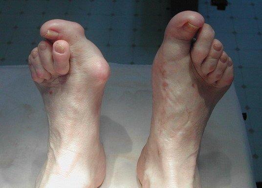 Вывих большого пальца на ноге: симптомы и лечение, вправление