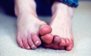 Посинели пальцы на ноге