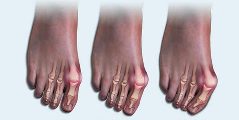 Деформации пальцев стопы при артрите фото