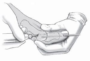 Хирургическая операция на большом пальце
