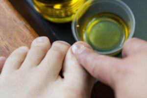 Обработка ногтей маслом чайного дерева