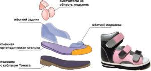Конструкция обуви для профилактики боли в пятке