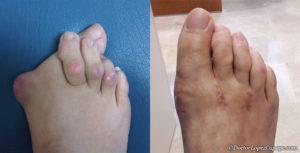 До и после операции по удалению шишек