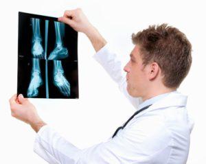 Изучение рентгеновских снимков стоп