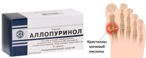 Аллопуринол для устранения кристаллов уратов
